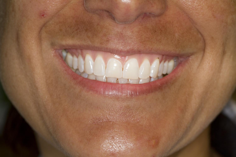 - Teeth Whitening